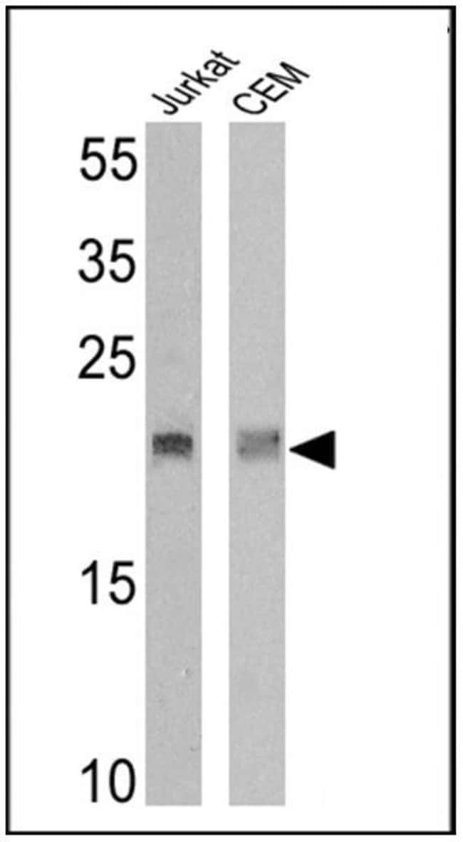 TCR V delta 2 Mouse anti-Human, Clone: 15D, Invitrogen™ 200 μg; Unconjugated Primary Antibodies T1 to Td