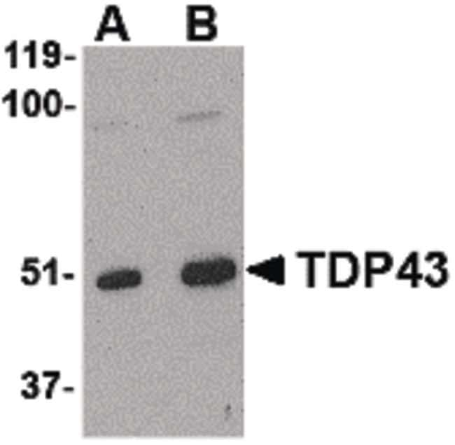 TDP-43 Rabbit anti-Human, Mouse, Rat, Polyclonal, Invitrogen 100 µg;