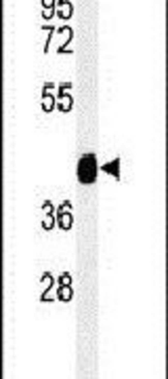 TEKT4 Rabbit anti-Human, Mouse, Polyclonal, Invitrogen 400 µL; Unconjugated