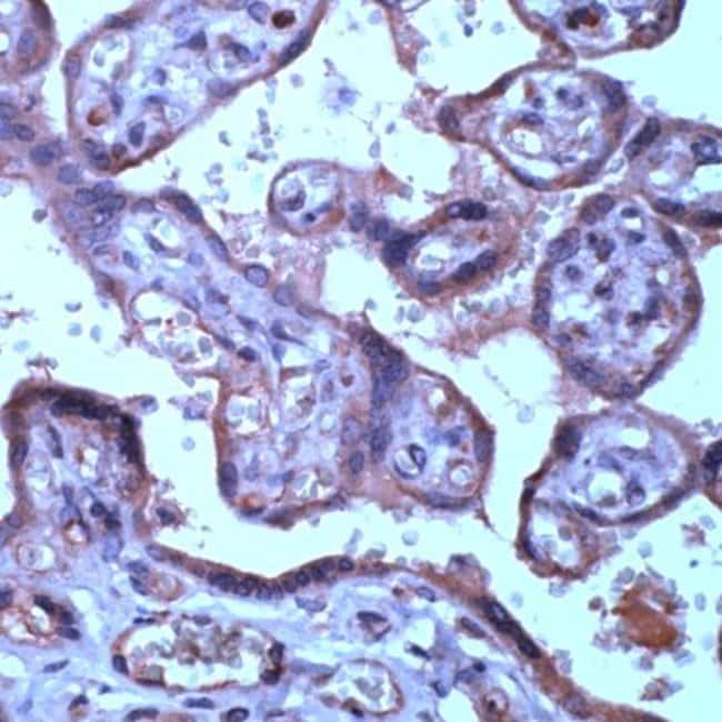 TIMP3 Rabbit anti-Human, Polyclonal, Invitrogen 1 mL; Unconjugated:Antibodies