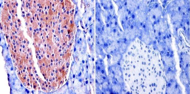 TIMP2 Mouse anti-Human, Mouse, Clone: F27 P3 A4, Invitrogen 100 μg;