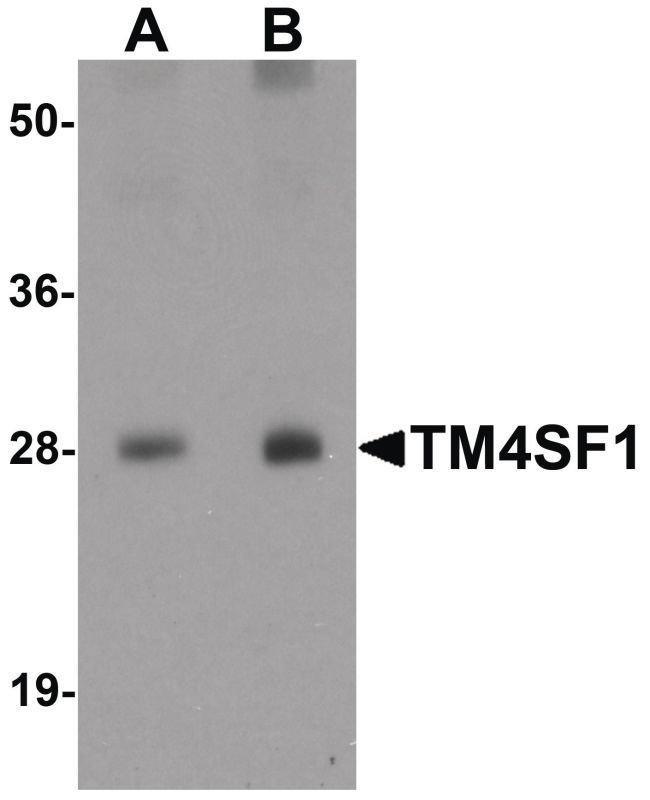 TM4SF1 Rabbit anti-Human, Mouse, Rat, Polyclonal, Invitrogen 100 µg;