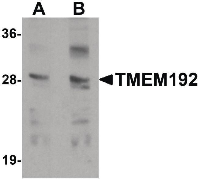 TMEM192 Rabbit anti-Human, Mouse, Rat, Polyclonal, Invitrogen 100 µg;