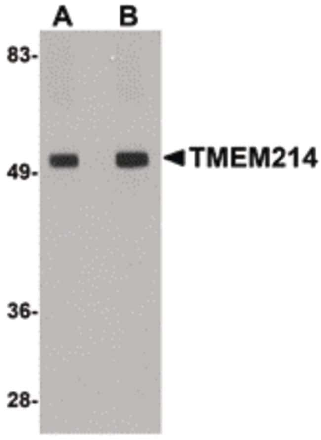 TMEM214 Rabbit anti-Human, Mouse, Rat, Polyclonal, Invitrogen 100 µg;