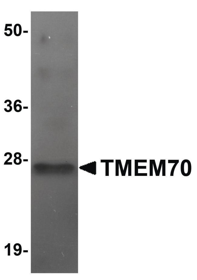 TMEM70 Rabbit anti-Human, Mouse, Rat, Polyclonal, Invitrogen 100 µg;