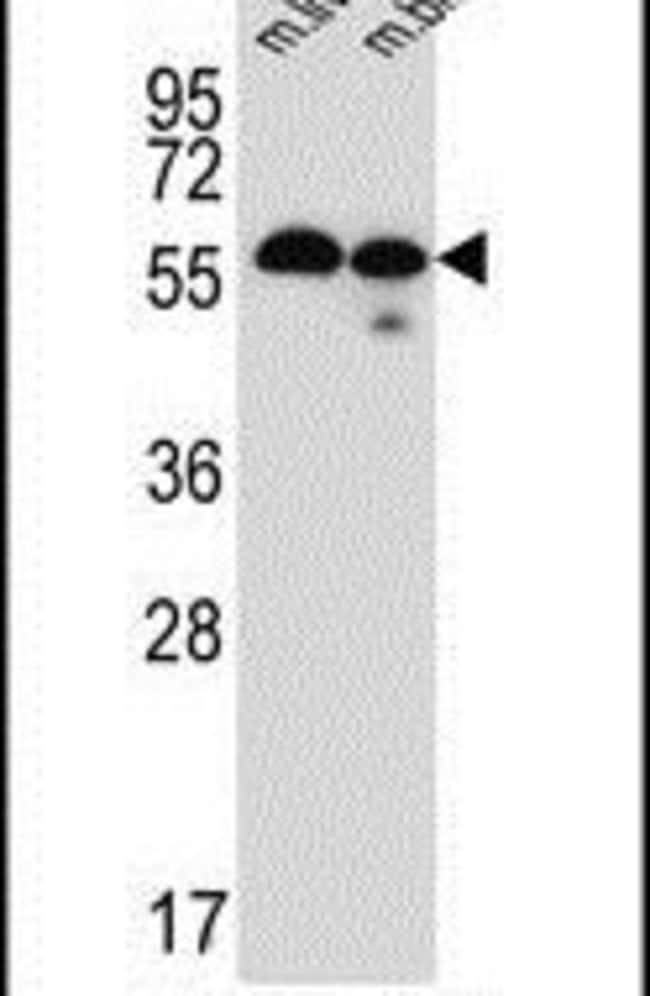 TMEM87B Rabbit anti-Human, Mouse, Polyclonal, Invitrogen 400 µL; Unconjugated