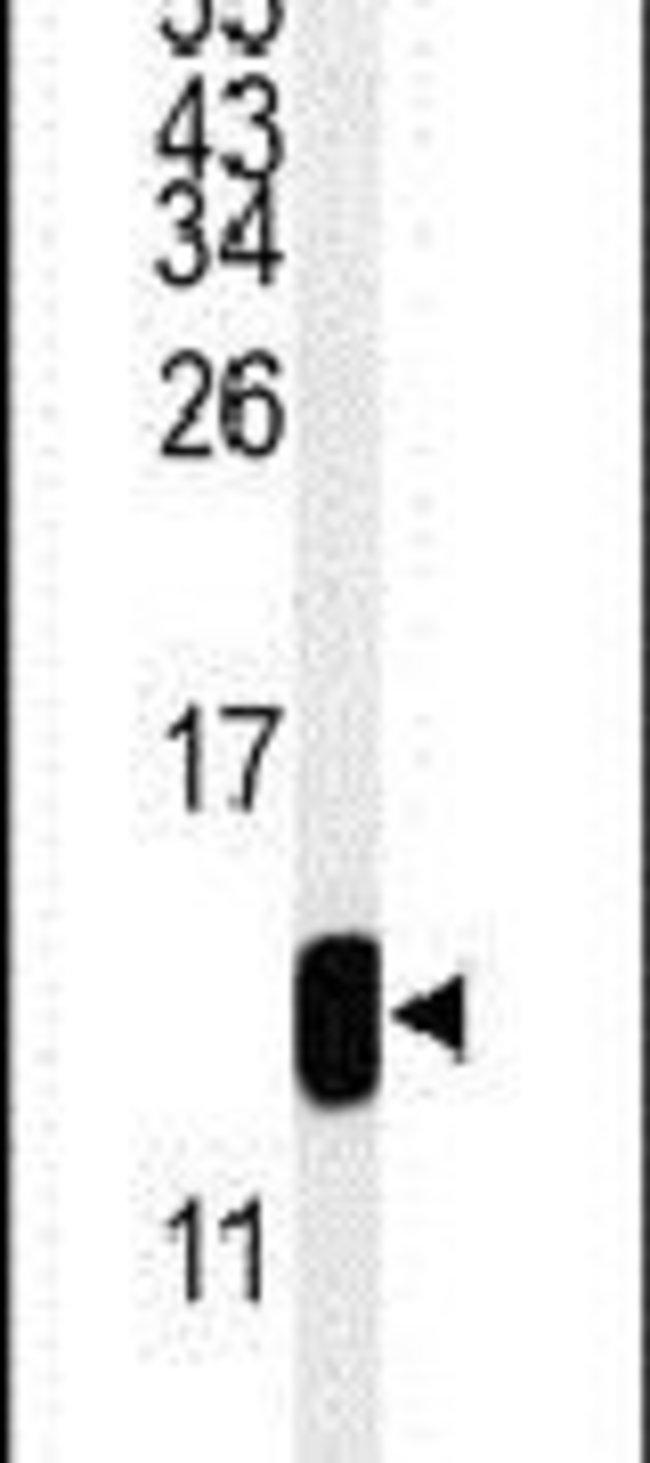 TMIE Rabbit anti-Human, Mouse, Polyclonal, Invitrogen 400 µL; Unconjugated