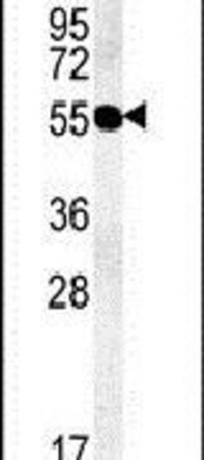 TMEM79 Rabbit anti-Human, Mouse, Polyclonal, Invitrogen 400 µL; Unconjugated