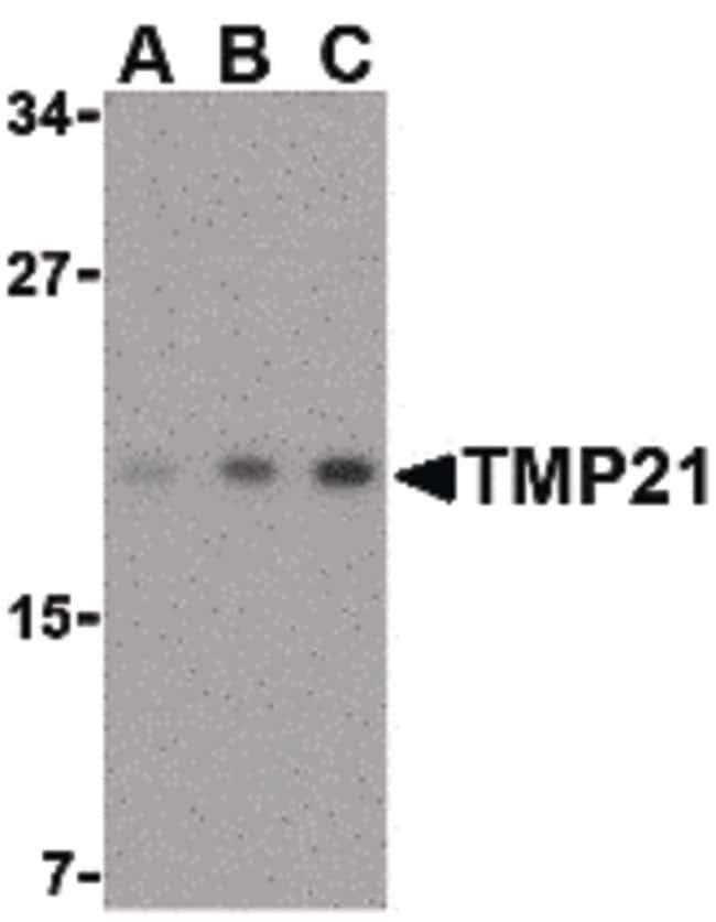 TMP21 Rabbit anti-Human, Mouse, Rat, Polyclonal, Invitrogen 100 µg;