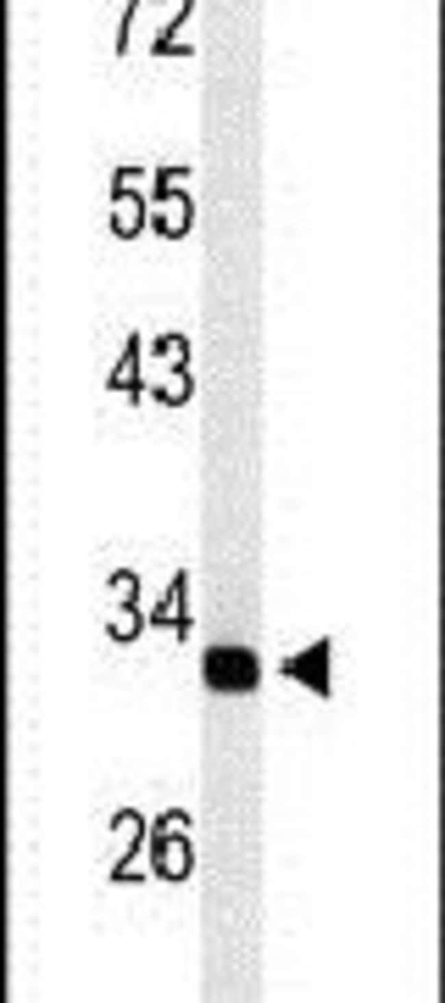 TMUB2 Rabbit anti-Human, Mouse, Polyclonal, Invitrogen 400 µL; Unconjugated