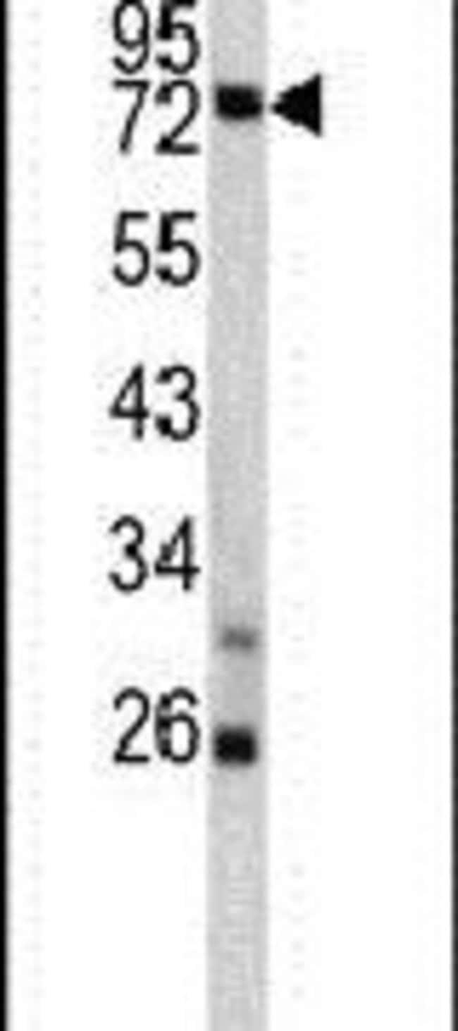 TNFAIP2 Rabbit anti-Human, Mouse, Polyclonal, Invitrogen 400 µL; Unconjugated