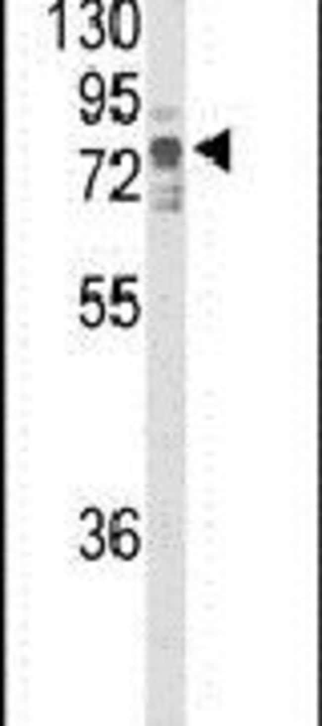 TNK1 Rabbit anti-Human, Polyclonal, Invitrogen 400 µL; Unconjugated