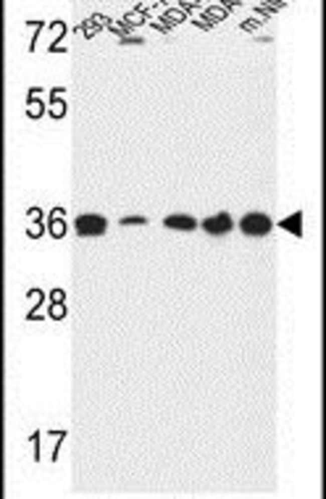 TOR1B Rabbit anti-Human, Mouse, Polyclonal, Invitrogen 400 µL; Unconjugated