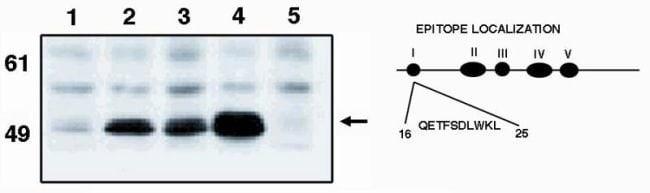 p53 Mouse anti-Human, Mouse, Xenopus laevis, Clone: X77, Invitrogen 100
