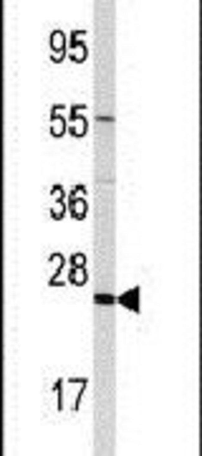 TRAPPC4 Rabbit anti-Human, Polyclonal, Invitrogen 400 µL; Unconjugated