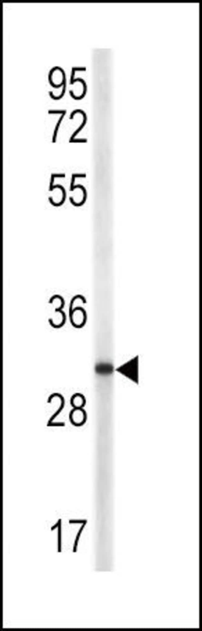 CD154 (CD40 Ligand) Rabbit anti-Human, Polyclonal, Invitrogen 400 µL;