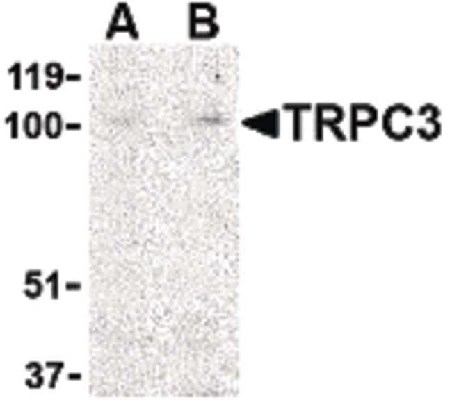 TRPC3 Rabbit anti-Human, Mouse, Polyclonal, Invitrogen 100 µg; Unconjugated