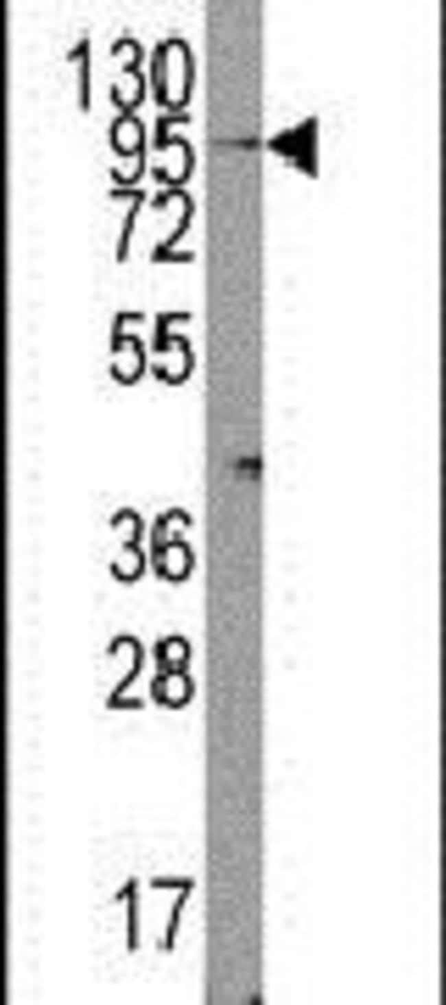 TRPV3 Rabbit anti-Mouse, Polyclonal, Invitrogen 400 µL; Unconjugated