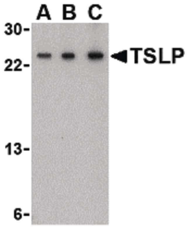 TSLP Rabbit anti-Human, Mouse, Polyclonal, Invitrogen 100 µg; Unconjugated