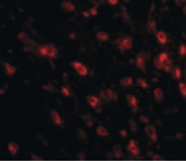 TTBK1 Rabbit anti-Human, Mouse, Polyclonal, Invitrogen 100 µg; Unconjugated