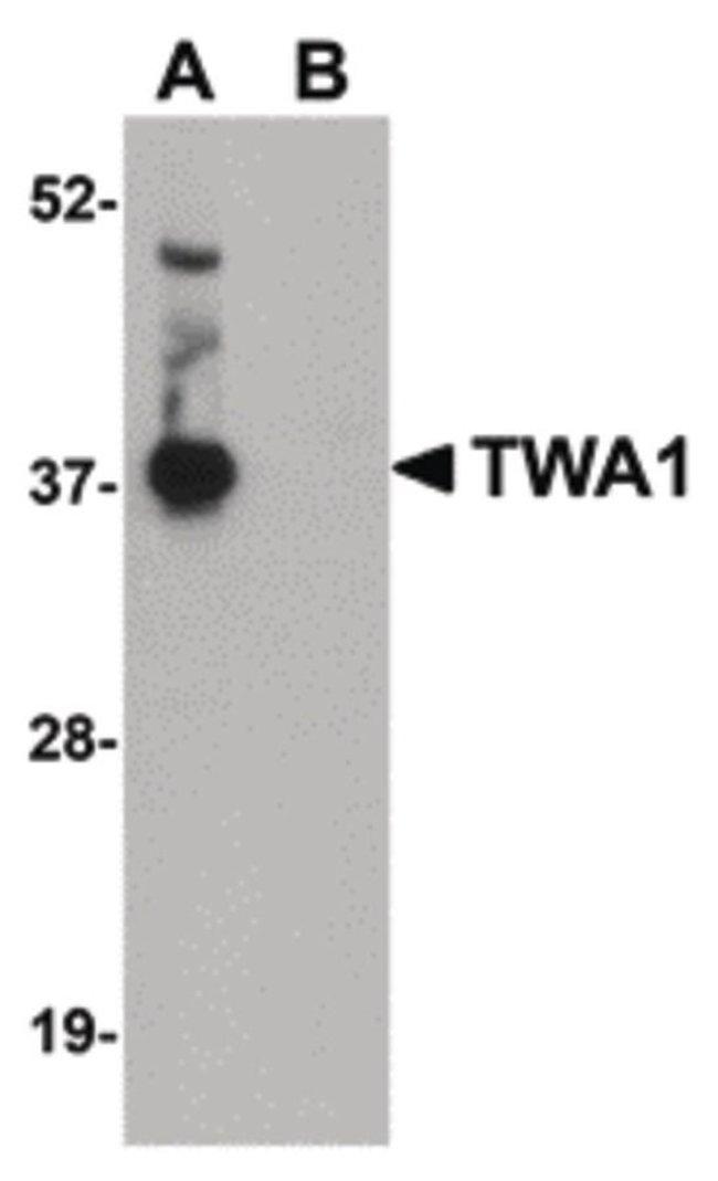 TWA1 Rabbit anti-Human, Mouse, Rat, Polyclonal, Invitrogen 100 µg;