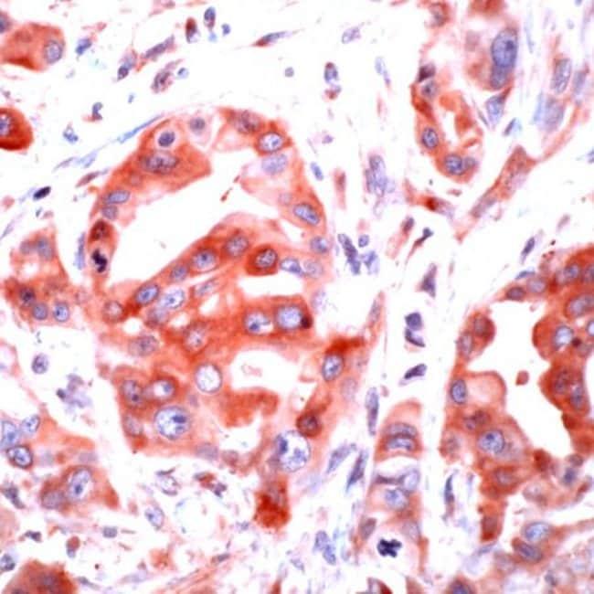 PAR1 Rabbit anti-Human, Polyclonal, Invitrogen 1 mL; Unconjugated:Antibodies