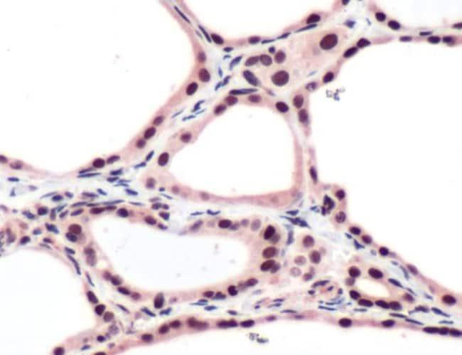 THRB Rabbit anti-Human, Polyclonal, Invitrogen 1 mL; Unconjugated