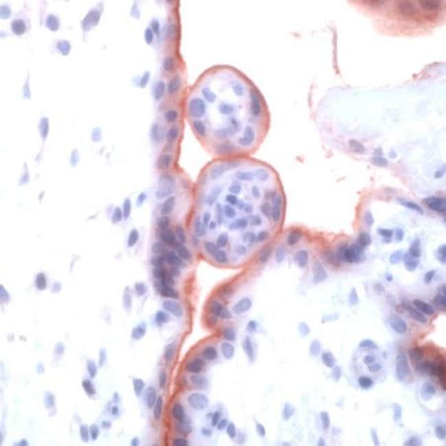 TGFBR1 Rabbit anti-Bovine, Human, Mouse, Rat, Polyclonal, Invitrogen 1