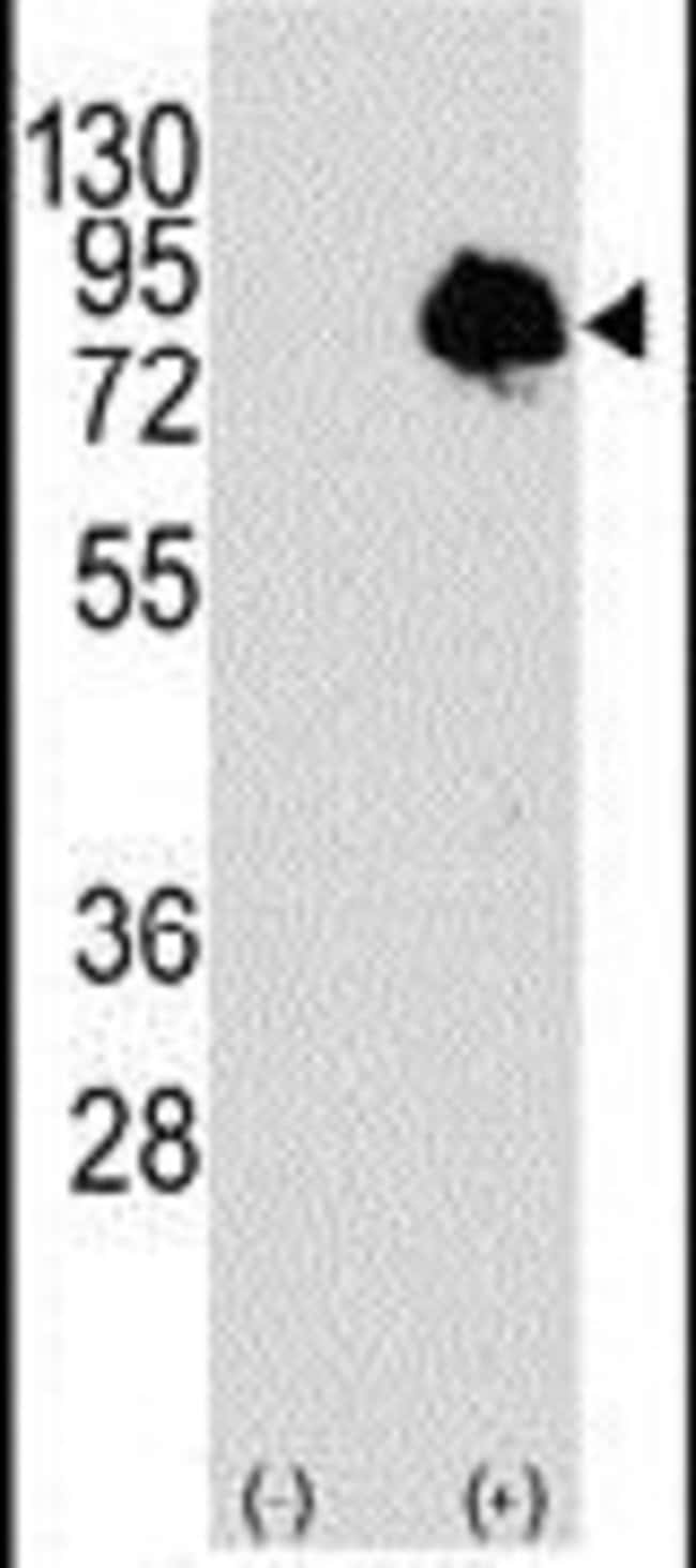 TGM2 Rabbit anti-Human, Polyclonal, Invitrogen 400 µL; Unconjugated