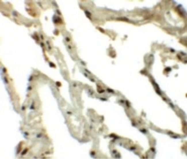 TSN Rabbit anti-Human, Mouse, Rat, Polyclonal, Invitrogen 100 µg;