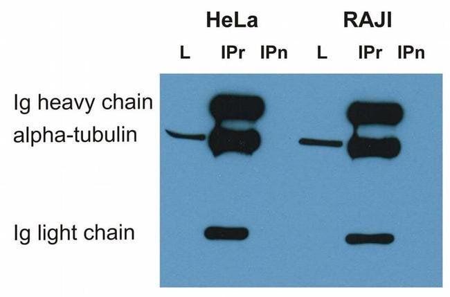 alpha Tubulin Mouse anti-Many, Clone: TU-01, Invitrogen 100 μg; Unconjugated:Antibodies