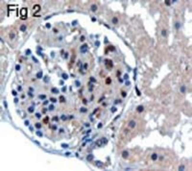UBC9 Goat anti-Human, Mouse, Rat, Polyclonal, Invitrogen 100 μg; Unconjugated:Antibodies