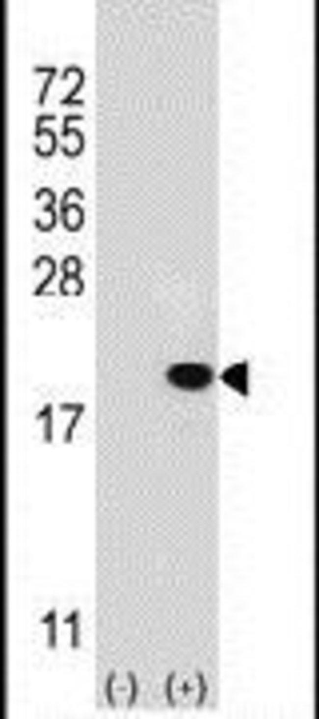 UBE2V1 Rabbit anti-Human, Mouse, Polyclonal, Invitrogen 400 µL; Unconjugated