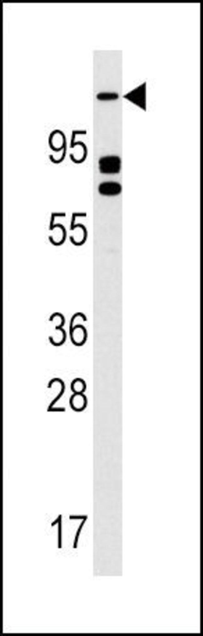 ULK2 Rabbit anti-Human, Polyclonal, Invitrogen 400 µL; Unconjugated