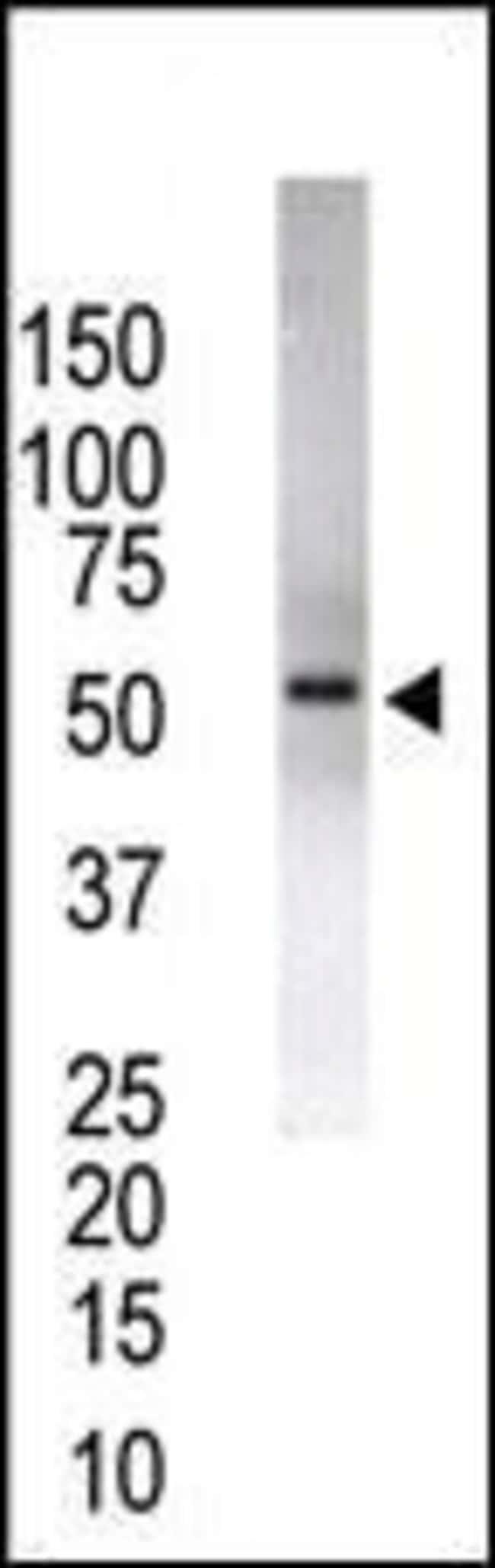 USP14 Rabbit anti-Human, Polyclonal, Invitrogen 400 µL; Unconjugated