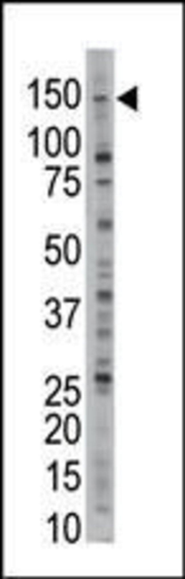 USP28 Rabbit anti-Human, Polyclonal, Invitrogen 400 µL; Unconjugated