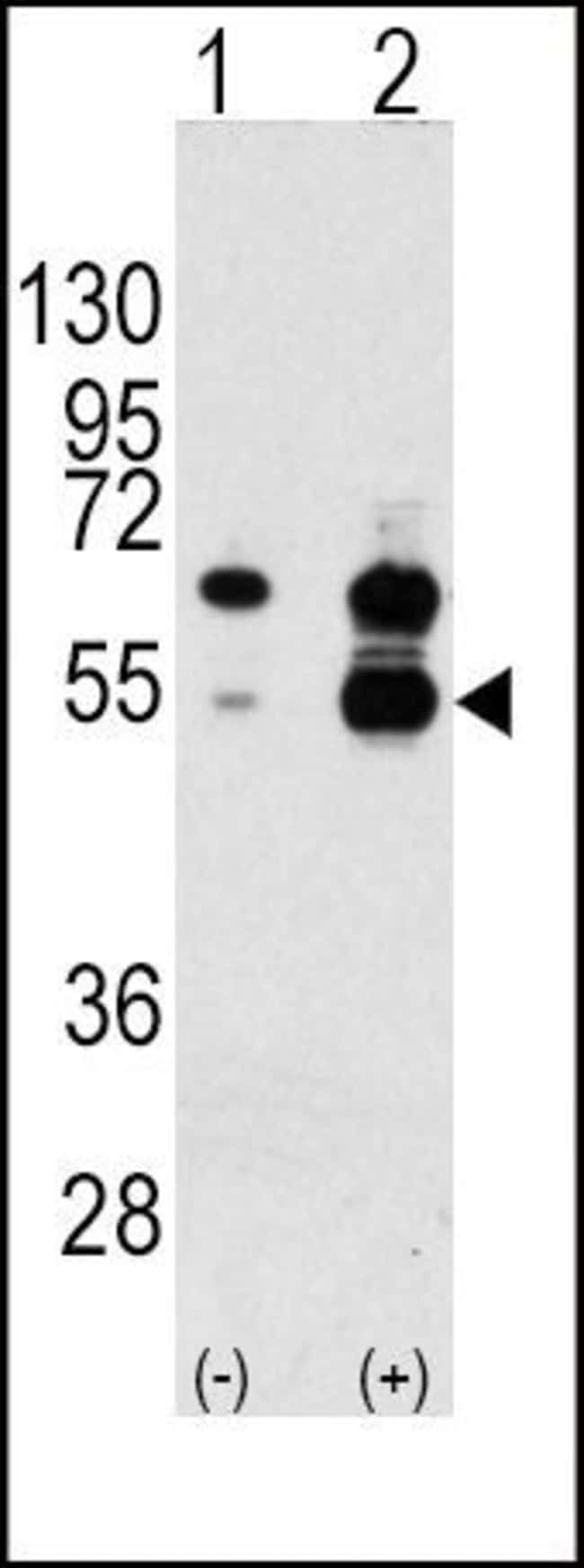 VEGF Rabbit anti-Human, Polyclonal, Invitrogen 400 µL; Unconjugated