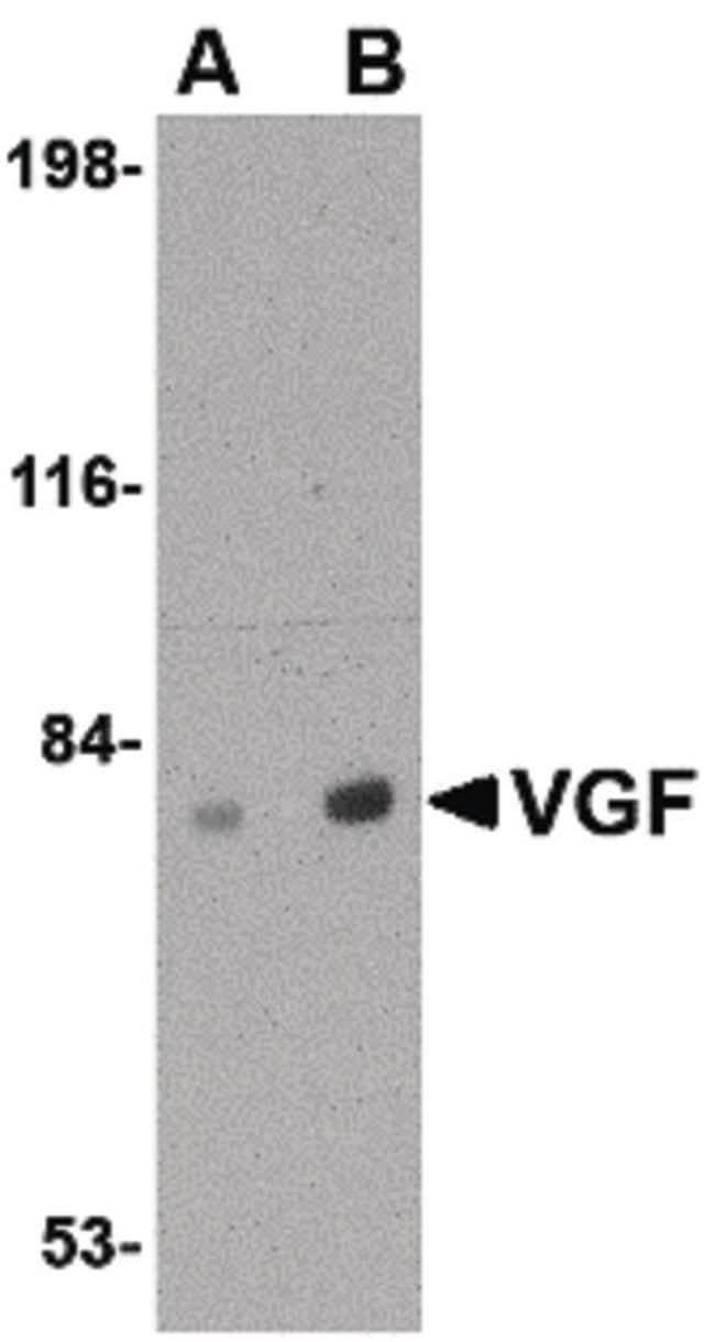 VGF Rabbit anti-Human, Mouse, Rat, Polyclonal, Invitrogen 100 µg;