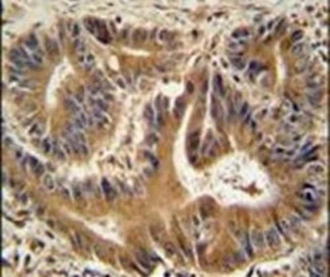 VPS52 Rabbit anti-Human, Polyclonal, Invitrogen 400 µL; Unconjugated