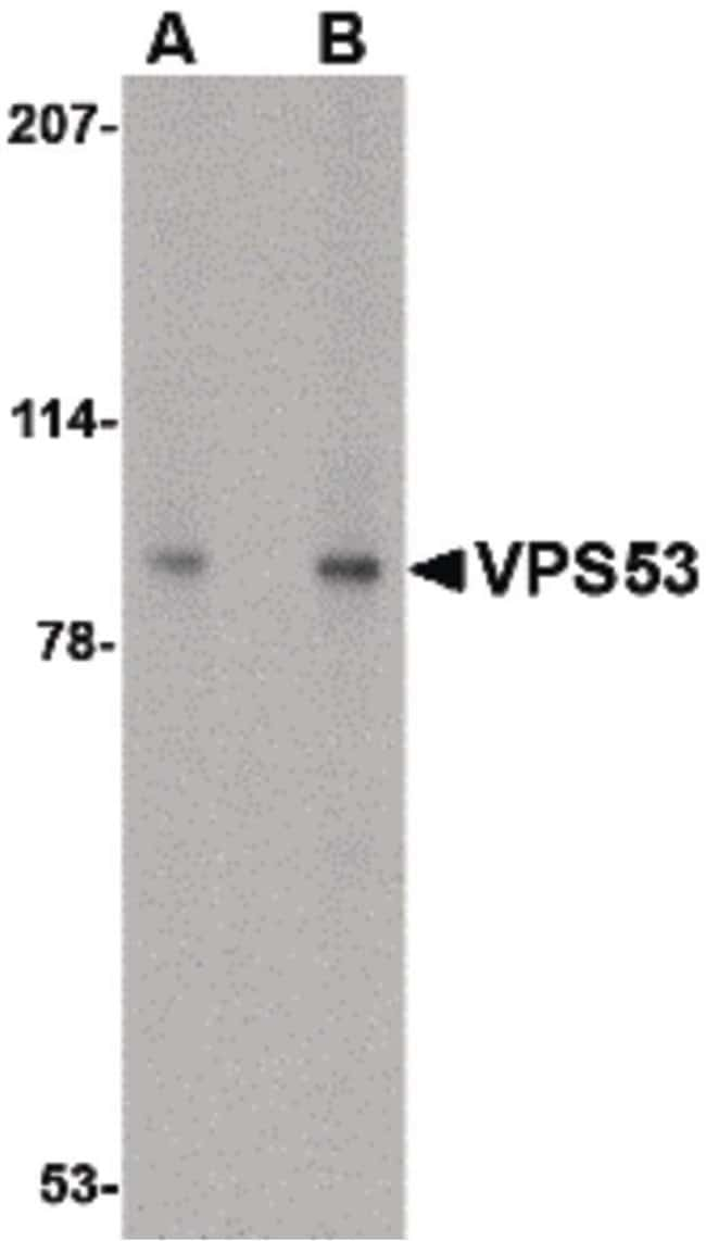 VPS53 Rabbit anti-Human, Mouse, Rat, Polyclonal, Invitrogen 100 µg;