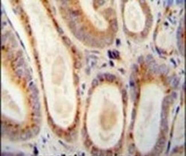 WFDC12 Rabbit anti-Human, Polyclonal, Invitrogen 400 µL; Unconjugated