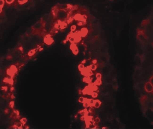 YBX2 Rabbit anti-Human, Mouse, Rat, Polyclonal, Invitrogen 100 µg;