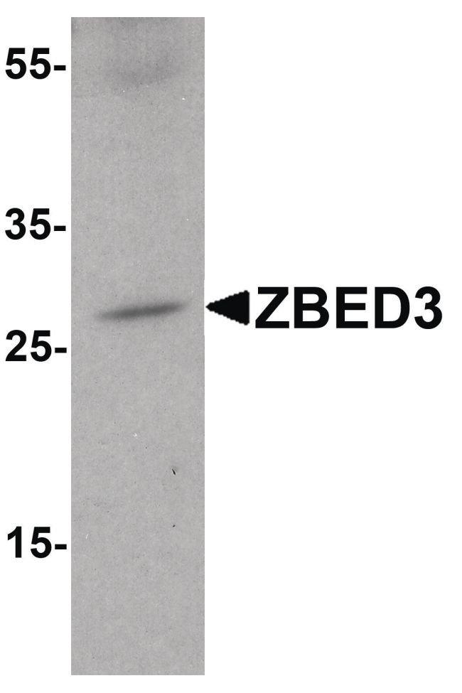 ZBED3 Rabbit anti-Human, Mouse, Rat, Polyclonal, Invitrogen 100 µg;