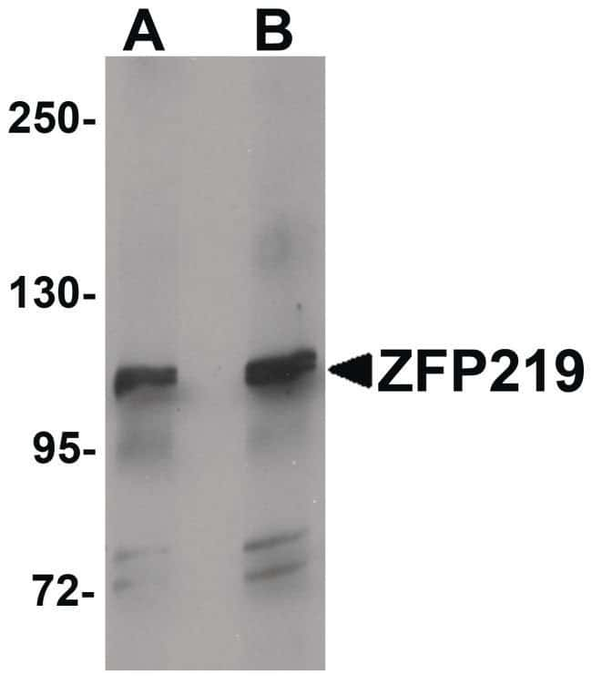 ZNF219 Rabbit anti-Human, Mouse, Rat, Polyclonal, Invitrogen 100 µg;