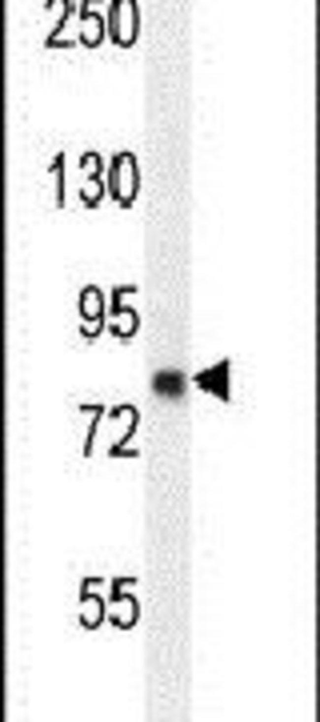 ZFYVE28 Rabbit anti-Human, Mouse, Polyclonal, Invitrogen 400 µL; Unconjugated