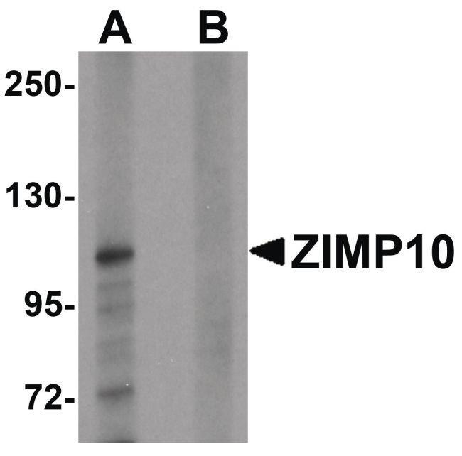 ZMIZ1 Rabbit anti-Human, Polyclonal, Invitrogen 100 µg; Unconjugated