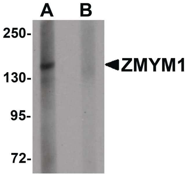 ZMYM1 Rabbit anti-Human, Mouse, Rat, Polyclonal, Invitrogen 100 µg;