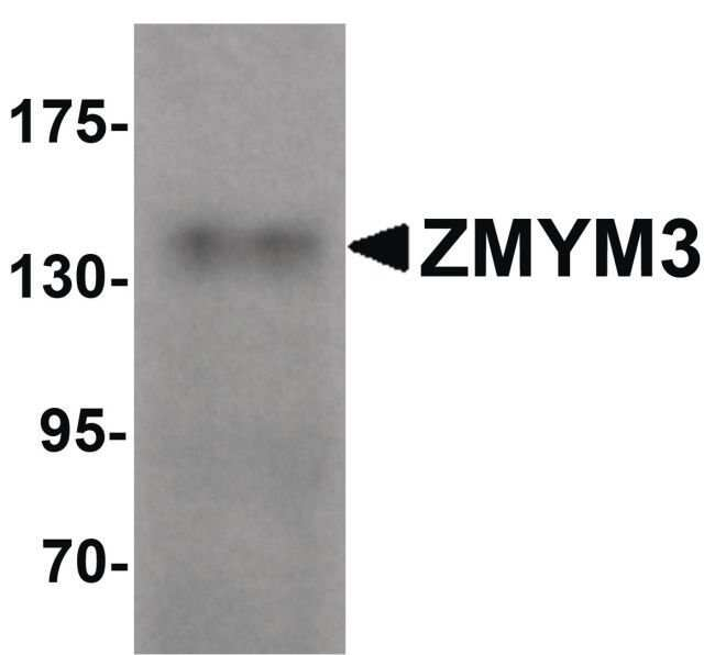 ZMYM3 Rabbit anti-Human, Mouse, Polyclonal, Invitrogen 100 µg; Unconjugated