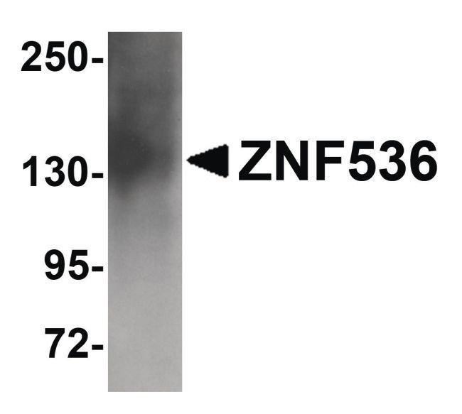 ZNF536 Rabbit anti-Human, Mouse, Rat, Polyclonal, Invitrogen 100 µg;
