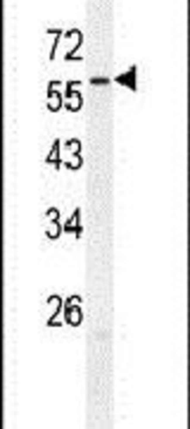 ZNF678 Rabbit anti-Human, Polyclonal, Invitrogen 400 µL; Unconjugated